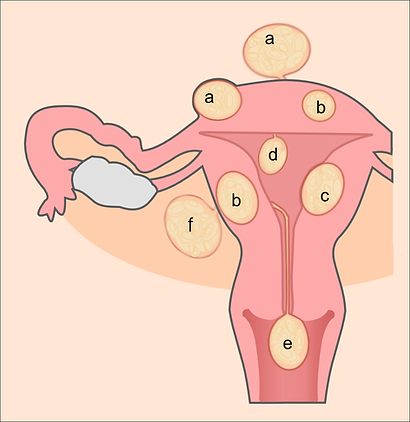 Uterine_fibroids.png