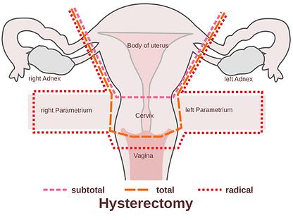 2000px-Scheme_hysterectomy-en.png