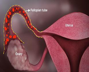 Fallopian tube.png