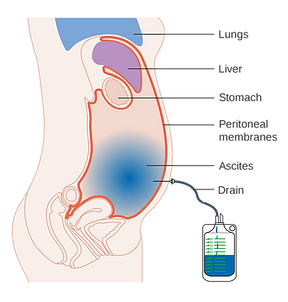 2000px-Diagram_showing_fluid_(ascites)_b