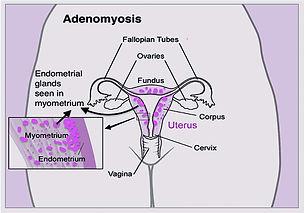 Adenomyosis.jpg