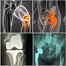 Ortopedia, Dr. Isaac Kalach