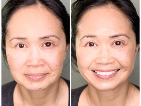 Why BB Glow is The Most Desired Beauty Treatment of 2019