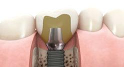 Stock Dental Implant Abutment