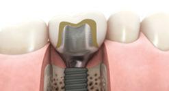 Atlantis Custom Dental Implant Abutment