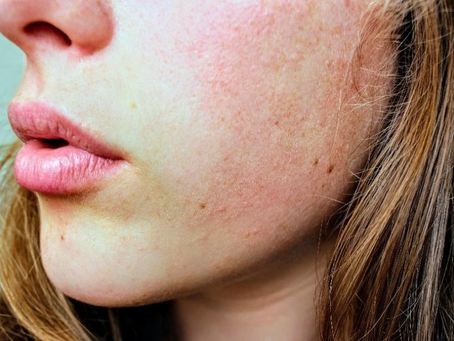 Your Skin and How Hormones Play a Role