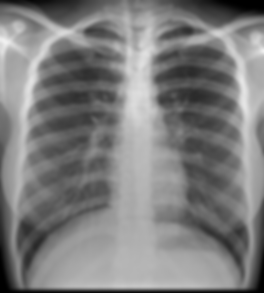 digital-x-ray-250x250.png