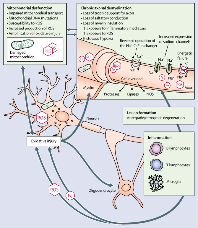 progressive MS, degeneration, Microglia, macrophages, chronic inflammation in multiple sclerosis