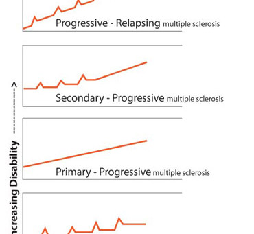 Can progressive MS be prevented?
