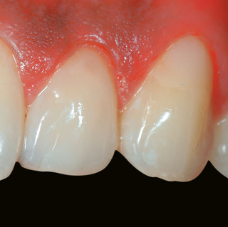 Restoration of Tooth Surface Defects & Crack Lines (After)