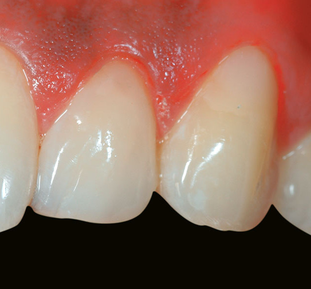 Tooth surface defects (non-caries) – After
