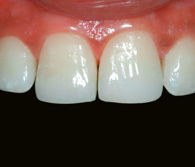 Multiple teeth – Fractured / Chipped Teeth (After)