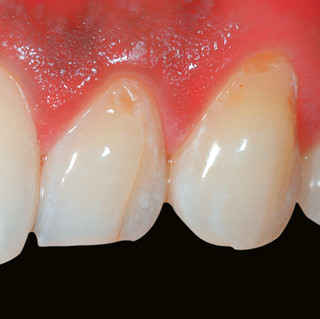 Restoration of Tooth Surface Defects & Crack Lines (Before)