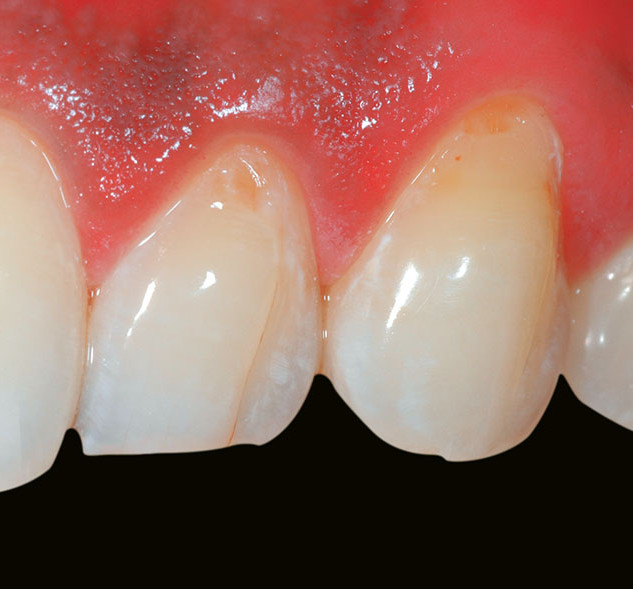 Tooth surface defects (non-caries) – Before