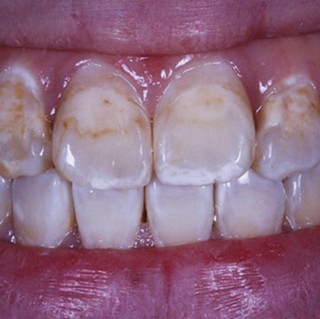 Restoration of Tooth Discoloration (before)