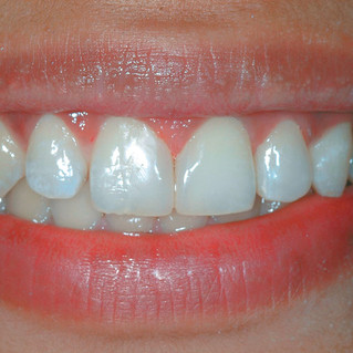 Smile Rejuvenation - Diastema Closure & Modification of Lateral Incisor (After)
