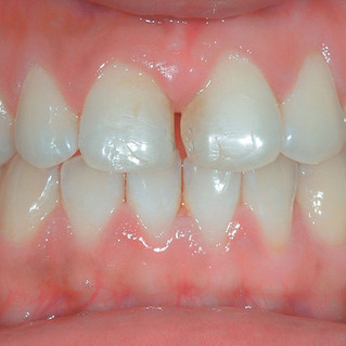 Smile Rejuvenation – Diastema Closure (Before)