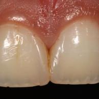 Smile Rejuvenation with Cosmetic  Enamel Restorations