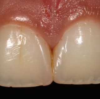 Smile Rejuvenation with Cosmetic Enamel Restorations