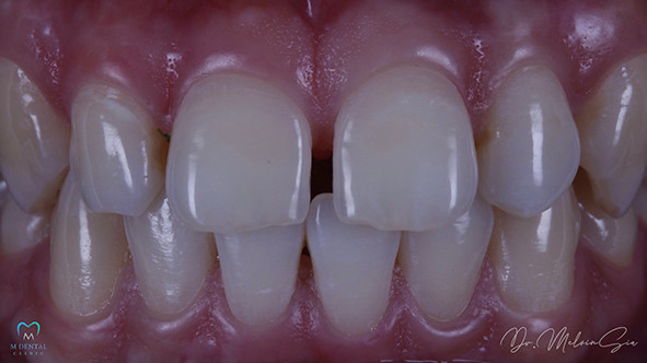 Smile Rejuvenation – Before