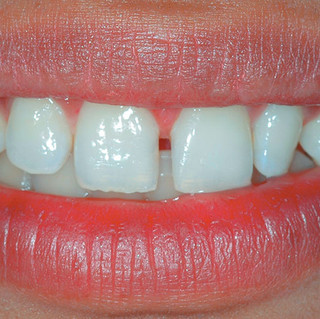 Smile Rejuvenation - Diastema Closure & Modification of Lateral Incisor (Before)