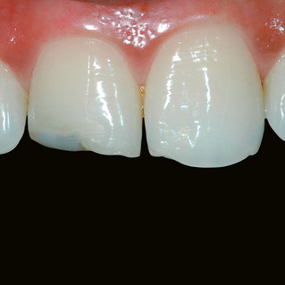 Restoration of Fractured & Chipped Teeth (Before)