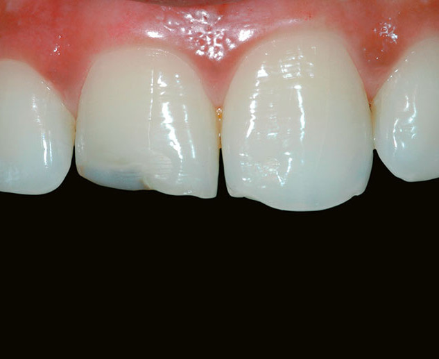 Multiple teeth – Fractured / Chipped Teeth (Before)