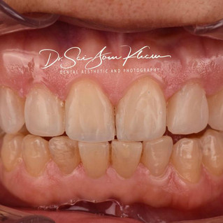 Smile Rejuvenation with Direct Composites-After