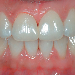 Smile Rejuvenation – Diastema Closure (After)