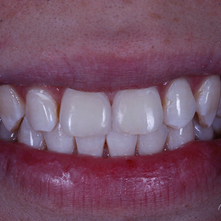Smile Rejuvenation – After