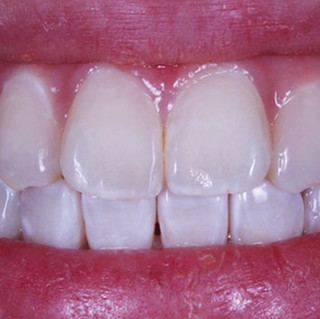 Restoration of Tooth Discoloration (after)
