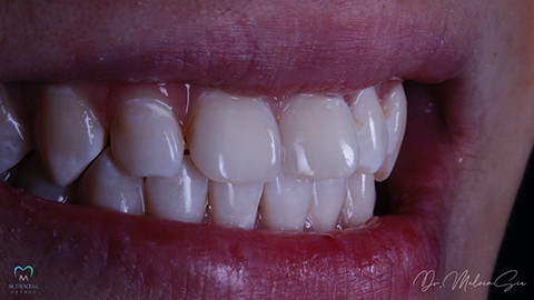 Diastema Closure - After