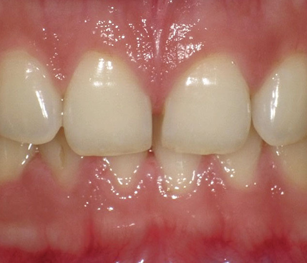 Smile Rejuvenation with Direct Restorations (before)