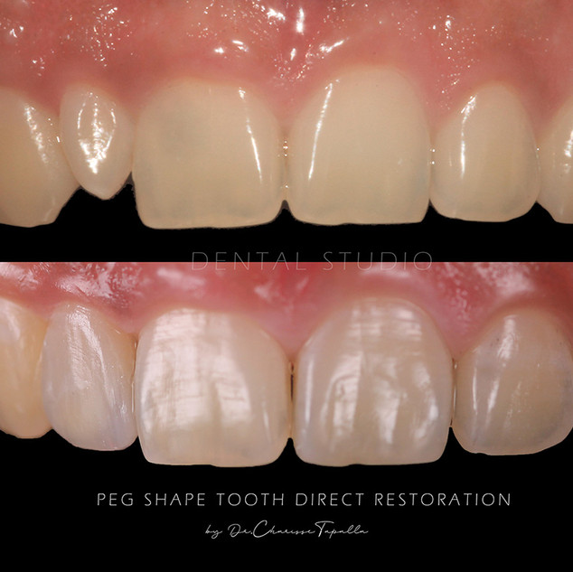DENTAL STUDIO Peg Shape