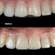 Anterior Restoration – Before & After.jpg