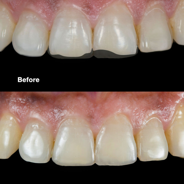 Anterior Restoration – Before & After