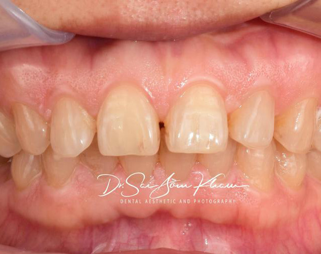 Smile Rejuvenation with Direct Composites-Before