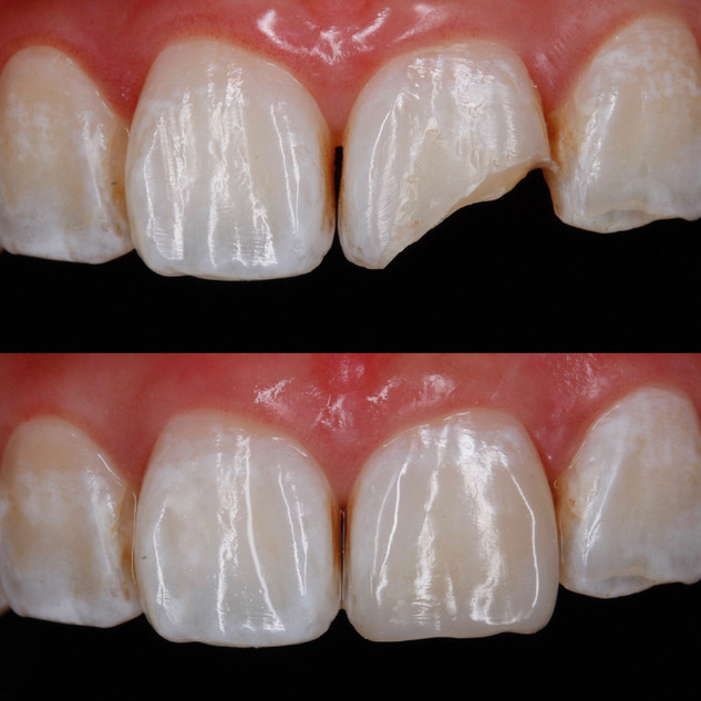 Anterior Restoration – Before & After.jpg