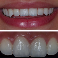 Smile Rejuvenation (Before & After)