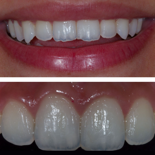 Smile Rejuvenation (Before & After)