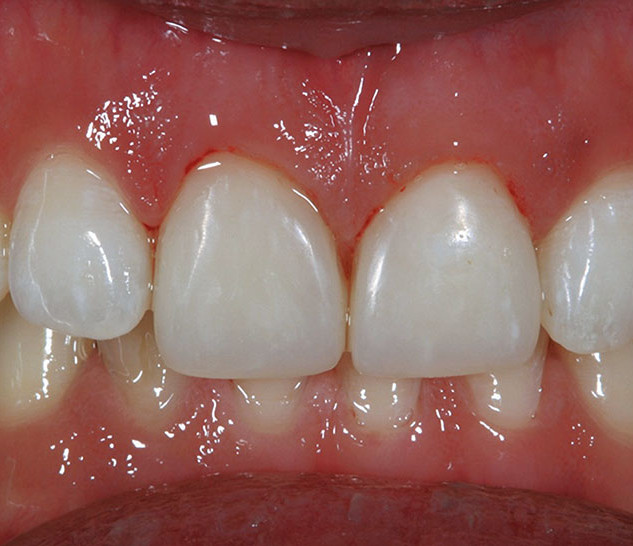 Smile Rejuvenation with Direct Restorations (after)