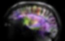 Brain Diffusion Spectrum Imaging.png