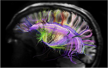 Brain Diffusion Spectrum Imaging.png