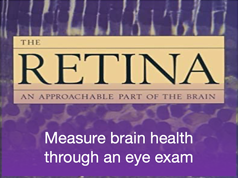 eye test for brain health for web.png