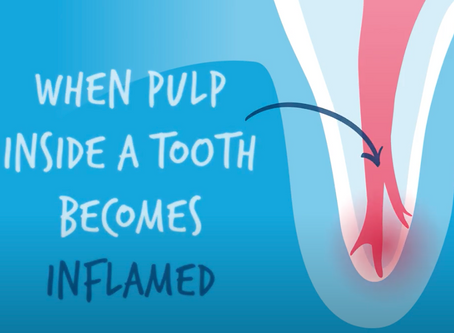 A Better Root Canal Mousetrap?