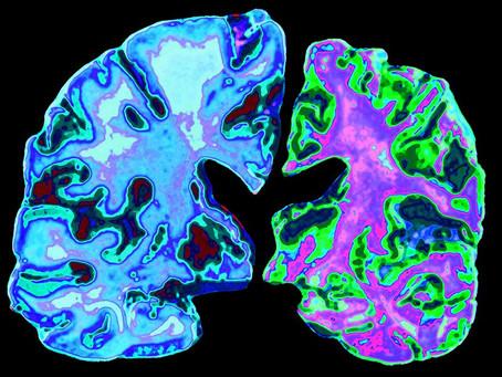 Prevent Alzheimer's - Know Your Risks