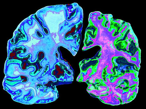 Brain or Eye Revival - Fix or Optimize Brain Health