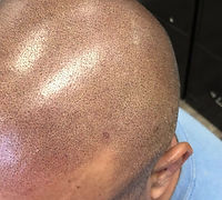 Scalp Micro Pigmentation Video