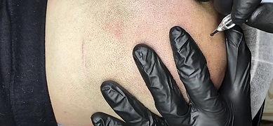 Scalp Micro Pigmentation Video