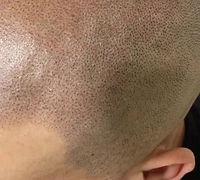 Hair Tattoo Video